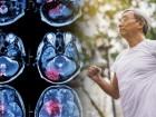 소리 없는 저격수…뇌졸중