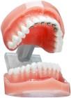 아이부터 성인까지, 적절한 '치아교정' 시기부작용은?