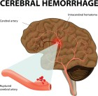 뇌출혈, '방관은 금물'…미리 준비하는 것이 중요